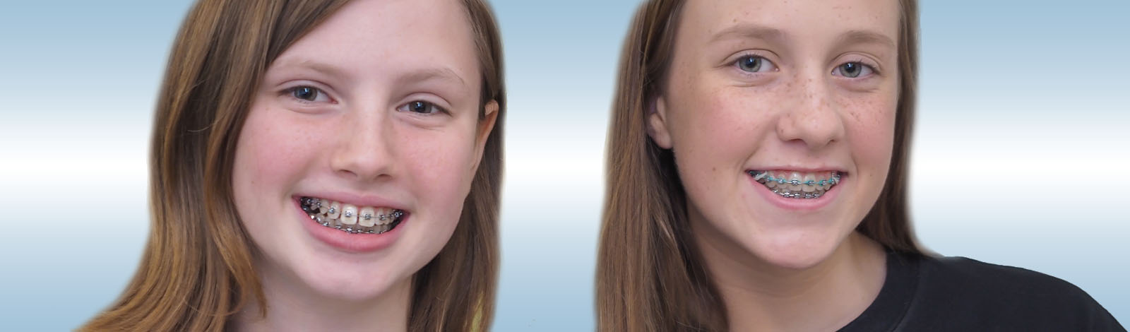 Faust Orthodontics Havertown Pa
