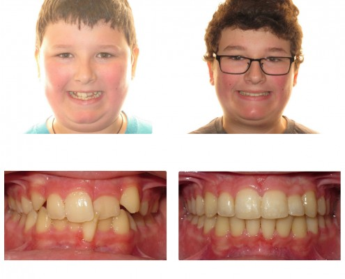 best orthodontist swathmore | Faust Orthodontics Havertown Pa