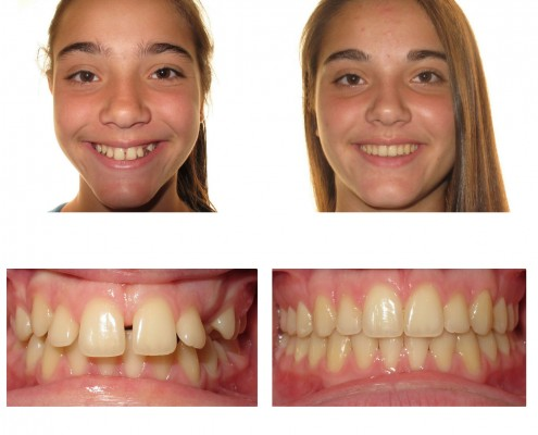 braces newtown square | Faust Orthodontics Havertown Pa