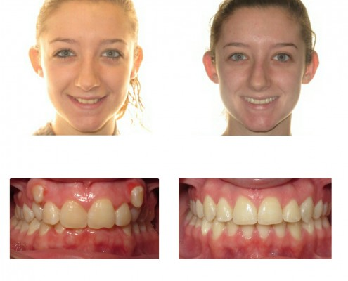 braces bryn mawr | Faust Orthodontics Havertown Pa
