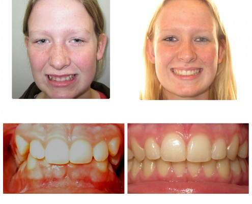 braces Ardmore | Faust Orthodontics Havertown Pa