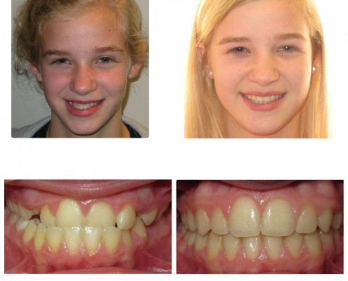 braces havetown | Faust Orthodontics Havertown Pa