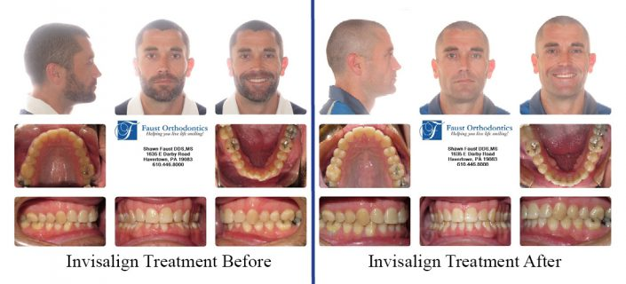 Invisalign Treatment For Adults | Faust Orthodontics